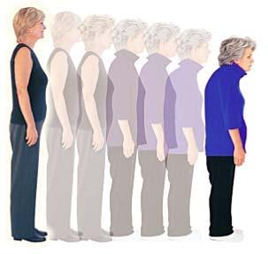 Επιπλοκές της Mετεμμηνοπαυσιακής Οστεοπόρωσης.